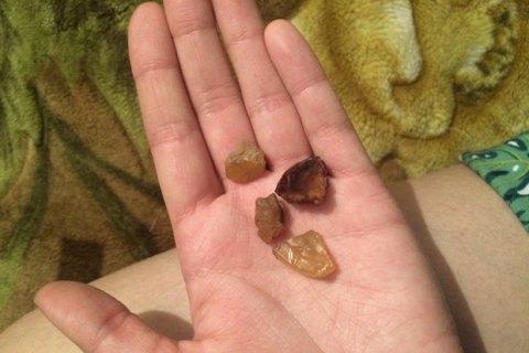 Житель Украины пытался вывезти вПольшу десятки килограммов янтаря